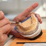 Keramikverblendung an einer zahntechnischen Versorgung